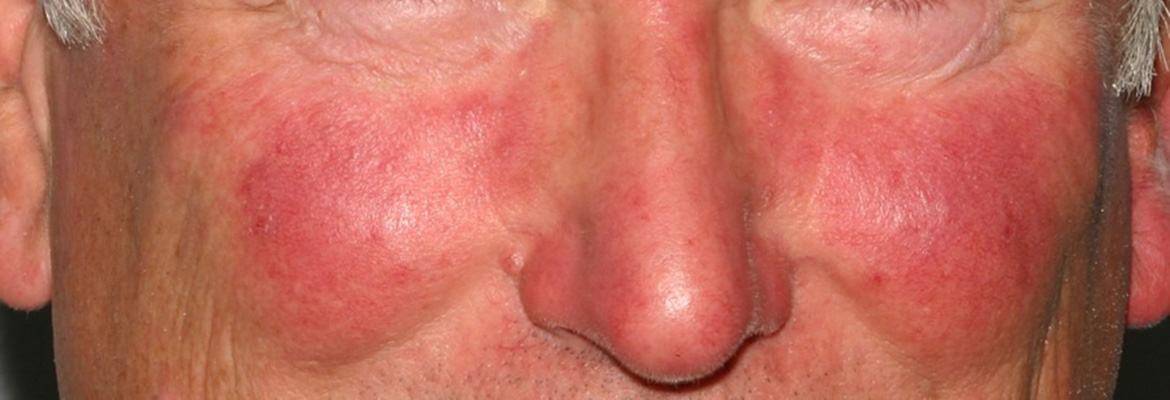 What Is Rosacea, and Are There Options for Treating It?
