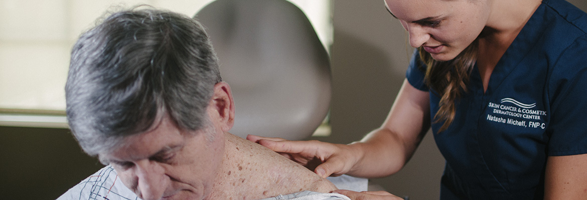Melanoma Skin Cancer Is Not Always Obvious