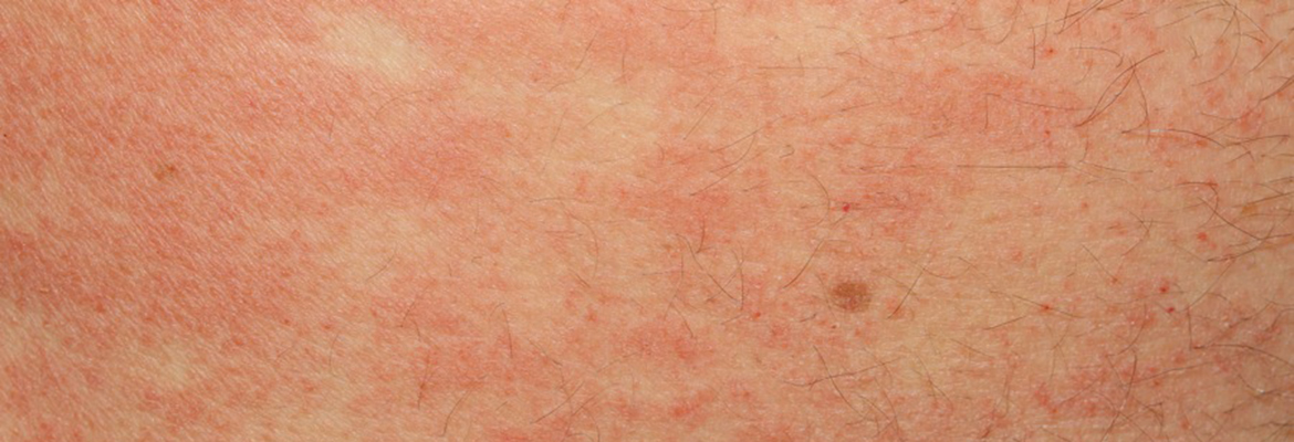 What's Hiding Behind Your Eczema?