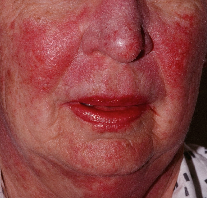 Lupus Your Skin Contains Clues To Diagnosing This Deadly Disease